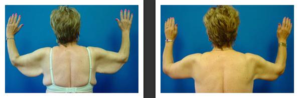 arm lift1